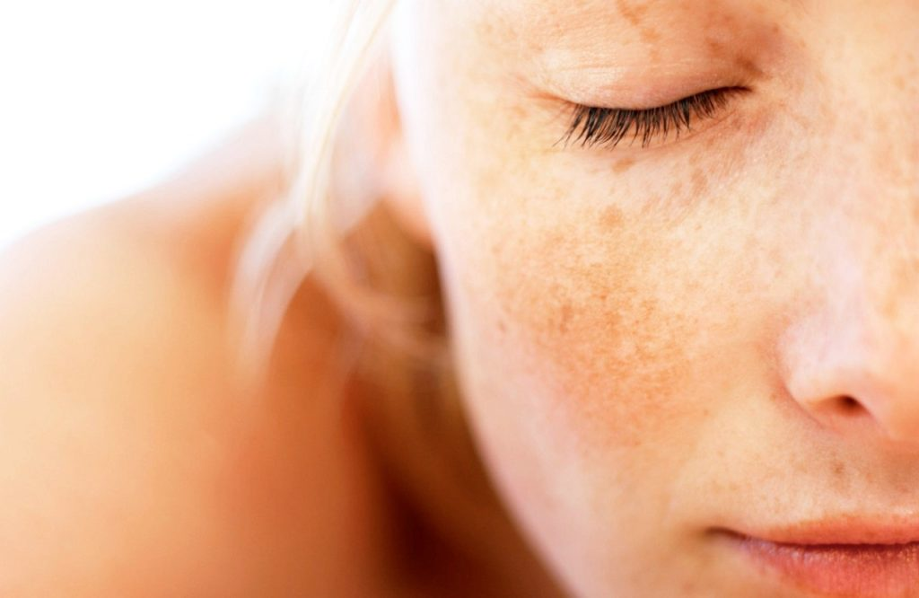 Summer Skin Issues you are Likely to Face
